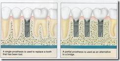 Dental Implants Carmel Indiana