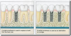Dental Implants Carmel Indiana