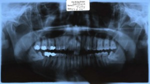 Wisdom Teeth Removal Indianapolis X-ray