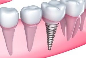 dental implants Noblesville Indiana