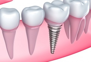 dental implants Noblesville Indiana