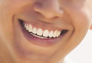 mini dental implants indianapolis