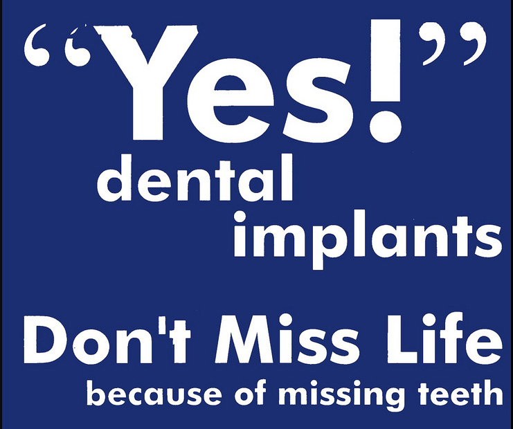 Dental Quotes Interesting Guide To Dental Implants Indianapolis  Cosmetic Dentist Indianapolis