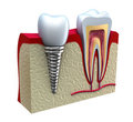 anatomy of dental implants Indianapolis