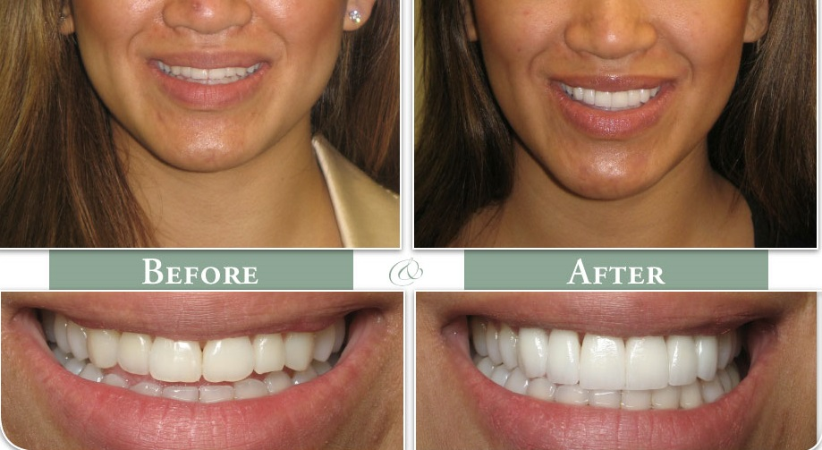 cosmetic dentist noblesville indiana